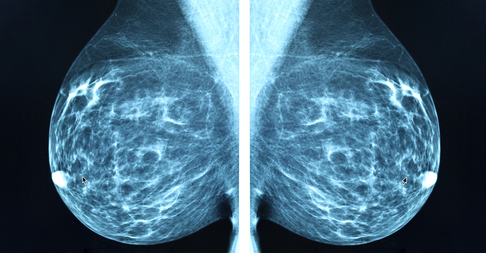 Breast Cancer Education Mammograms Behind The Ribbon