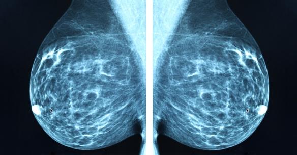 mammogram-blue
